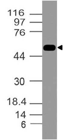 Fig.1: Expression analysis of DR-4. Anti-DR4 antibody (Clone: ABM1B11) was tested at 2 µg/ml on K562 lysate.