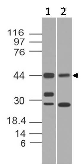 Fig-1: Western blot analysis of Rap1. Anti-Rap1 antibody (Clone: ABM13D9) was used at 2 µg/ml on Daudi and Ramos  lysates.