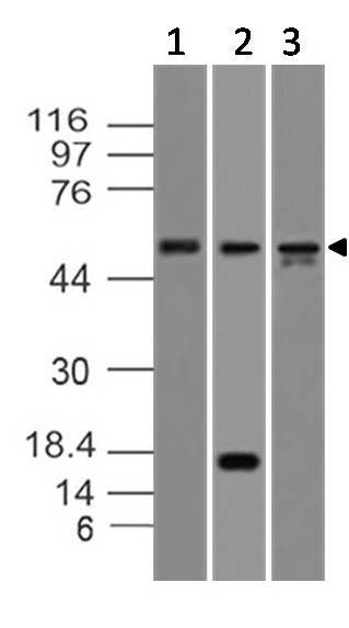 Fig-1:Western blot analysis of Caspase-8. Anti-Caspase-8  antibody (Clone: ABM14C1) was used at 2  µg/ml on Molt-4, Kato III and HepG2 lysates.