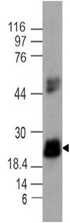 Figure-1: Western blot analysis of IL-17C. Anti- IL-17C antibody (Clone: ABM2H52) was tested at 2 µg/ml on A549 cell lysate.