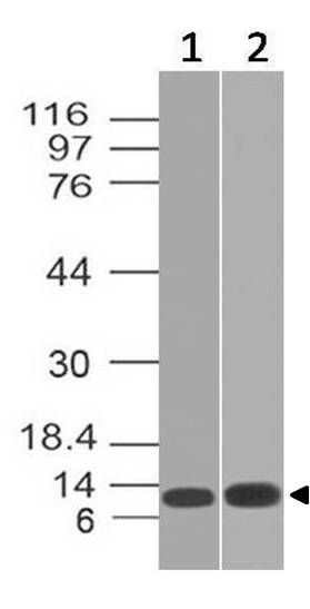 Monoclonal Antibody to Mouse S100A8 (Clone: ABM4A69)