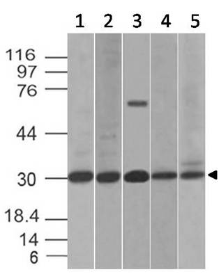Fig-4: Western blot analysis of B7-H4. Anti-B7-H4 antibody (Clone: ABM53A6) was used at 2 µg/ml on (1) HCT-116, (2) PC3, (3) Kato 111, (4) C2C12 and (5) RAW Lysates.