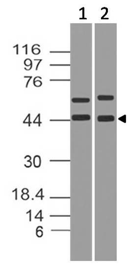 Fig-1: Western blot analysis of IkB alpha. Anti-IkB alpha antibody (Clone: ABM10F4) was used at 4 µg/ml on MCF7 and PC3 lysate.