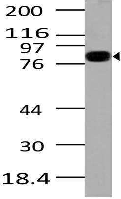 Fig-1: Western blot analysis of IKKb. Anti- IKKb antibody (Clone: ABM10E6) was used at 2 µg/ml on Raji lysate.