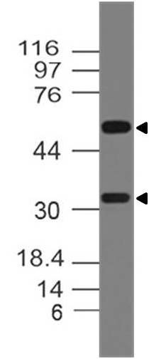 Fig-1: Western blot analysis of RANKL. Anti-RANKL antibody (Clone: ABM10A7) was used at 2 µg/ml on mPlacenta tissue lysate.