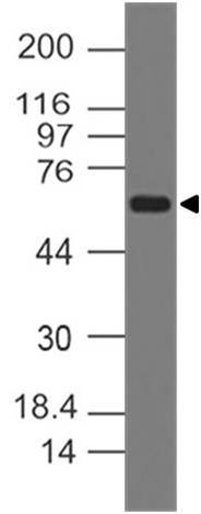 Fig-1: Western blot analysis of RANKL. Anti-RANKL antibody (Clone: ABM12D6) was used at 2 µg/ml on hHeart lysate.
