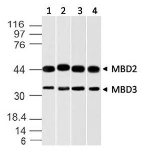Fig-1: Western blot analysis of MBD3 (and MBD2). Anti-MBD3 (and MBD2) antibody (Clone: ABM14A8) was used at 2 µg/ml on A431, K562, A375 and HEK293 lysates.