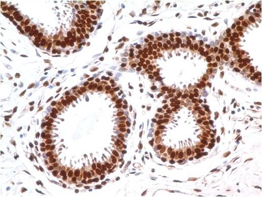 Fig-2 : Immunohistochemical analysis of MBD3 in human breast tissue using MBD3 antibody (Clone: ABM14A8) at 5 µg/ml.