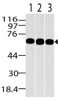 Fig-1: Western blot analysis of MBD1. Anti-MBD1 antibody (Clone: ABM15H2) was used at 2 µg/ml on HepG2, MCF7 and A431 lysates.