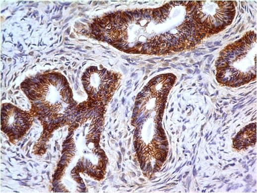 Fig-2 : Immunohistochemical analysis of MBD1  in Cystadenocarcinoma of ovary using MBD1 antibody (Clone: ABM15H2) at 5 µg/ml.