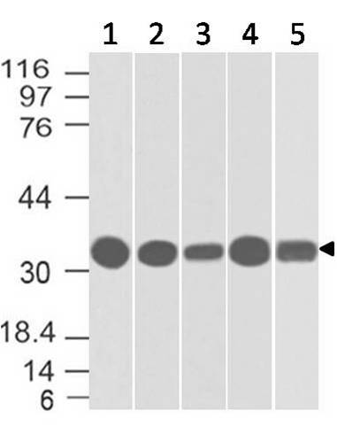 Figure-1: Western blot analysis of EpCAM. Anti- EpCAM antibody (Clone: ABM2C92) was used at 4 µg/ml on (1) h Intestine, (2) PANC-28, (3) A549, (4) h Kidney and (5) Hela lysates.