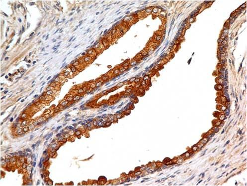 Figure-2 : Immunohistochemical analysis of EpCAM in human prostate tissue using EpCAM antibody (Clone: ABM2C92) at 5 µg/ml.