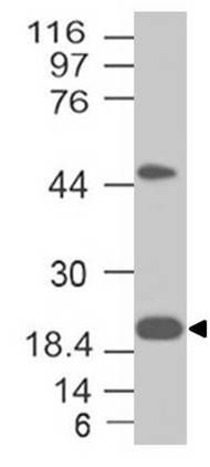 Fig-2: Western blot analysis of CD3e. Anti-CD3e antibody (Clone: ABM45B3) was tested at 0.5 µg/ml on MOLT-4 lysate.