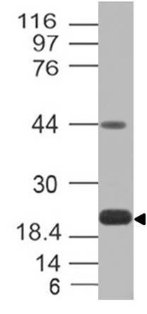 Fig-3: Western blot analysis of PD-L1. Anti-PD-L1 antibody (Clone: ABM4E54) was tested at 0.5 µg/ml on Recombinat lysates.