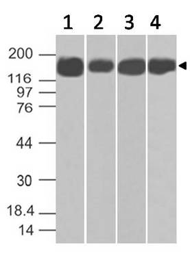 Fig:2- Expression analysis of Topo II alpha. Anti-Topo II alpha antibody (Clone: ABM48B4) was tested at 1 µg/ml on (1) HT-29, (2) 293, (3) A549 and (4) Raji Lysates.