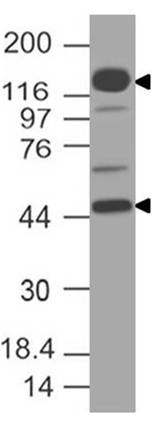 Figure-1: Western blot analysis of NUT. Anti-NUT antibody (Clone: ABM56F7) was tested at 2 µg/ml on h Testis lysate.