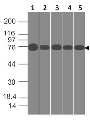 Figure-1: Western blot analysis of SPARCL1. Anti-SPARCL1 antibody (Clone: ABM5C3.2G1) was used at 1 µg/ml on (1) MCF-7, (2) A549, (3) HT-29, (4)  HCT-116 and (5) PANC-1 lysates.
