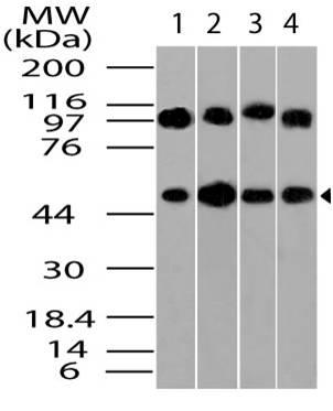 Polyclonal Antibody to Beta Tubulin