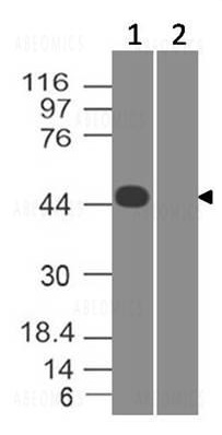 Figure-1: Western Blot analysis of SARS-CoV-2 Nucleocapsid Protein: Anti- SARS-CoV-2 Nucleocapsid Protein (11-2003) was used at 2 µg/ml on (1) SARS-CoV-2 virus infected Vero Cell lysate and (2) Mock infected lysate.