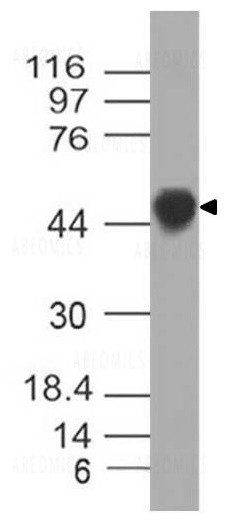 Figure-2: Western Blot analysis of Nucleocapsid antibody: Anti- Nucleocapsid antibody (SARS-CoV-2) was used at 4 µg/ml on recombinant Nucleocapsid Protein (21-1003).