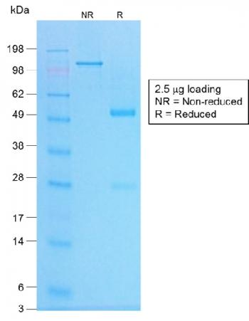 Figure 3: SDS-PAGE Analysis of Purified Chromogranin A Rabbit Recombinant Monoclonal Antibody (CHGA/1773R).