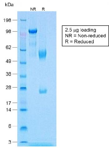 Recombinant Rabbit Monoclonal Antibody to Calponin-1 (Smooth Muscle Marker)(Clone : CNN1/1408R)