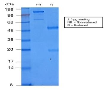 Figure 2: SDS-PAGE Analysis of Purified CD86 Rabbit Recombinant Monoclonal Antibody (C86/2160R).