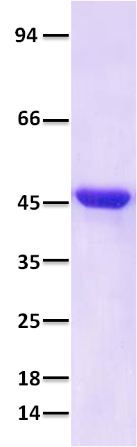 Figure-1: SDS-PAGE analysis of purified SARS-CoV-2 Nucleocapsid recombinant protein. 2 µg protein was run on a 4-20% SDS-PAGE gel followed by Coomassie blue staining.