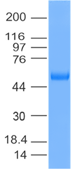 Figure 1: SDS PAGE- SARS-CoV-2 RBD recombinant protein. 5 µg protein was run on a 4-20% SDS-PAGE gel followed by Coomassie blue staining.