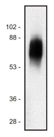 Figure 1:: Western blot of human Jurkat T cell line lysate (1% laurylmaltoside); non-reduced sample, immunostained by mAb SIT-01
