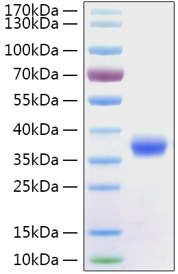 Fig 1 : Recombinant 2019-nCoV Spike RBD Protein was determined by SDS-PAGE with Coomassie Blue, showing a band at 36 kDa.