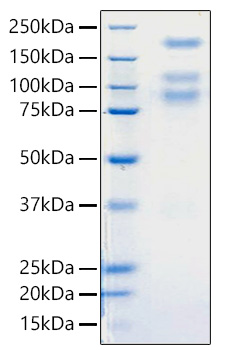 Fig 1 : Recombinant 2019-nCoV S1+S2 ECD Protein was determined by SDS-PAGE with Coomassie Blue, showing bands around 80, 110, 180 kDa.