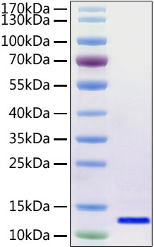 Figure-1:Recombinant 2019-nCoV envelope Protein was determined by