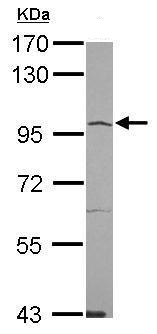 Figure-1: Western blot analysis of ACE2. Anti- ACE2  antibody (35-1874) was used at 1:1000 dilution on Hela lysate.