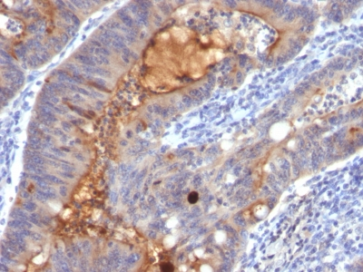 Formalin-fixed, paraffin-embedded human Colon Carcinoma stained with IgA Secretory Component Monoclonal Antibody (SPM217).