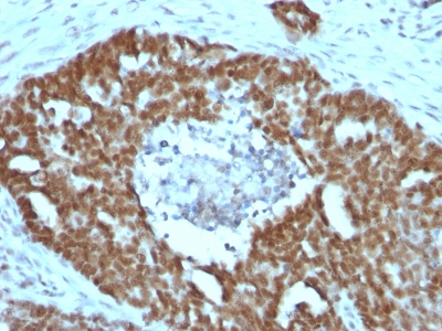 Formalin-fixed, paraffin-embedded human Bladder carcinoma stained with Nucleolin Monoclonal Antibody (NCL/902).