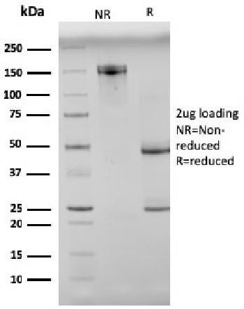 Fig. 2: SDS-PAGE Analysis Purified N-Cadherin Mouse Monoclonal Antibody (8C11). Confirmation of Integrity and Purity of Antibody.
