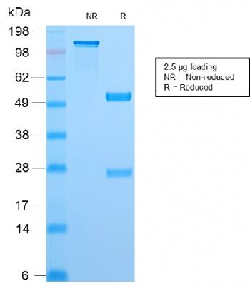 Anti-Topoisomerase I, Mitochondrial (TOP1MT) Monoclonal Antibody (Clone: TOP1MT/2883R)