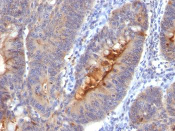 Fig. 1: Formalin-fixed, paraffin-embedded human Colon Carcinoma stained with Secretory Component Mouse Monoclonal Antibody (SC-05).