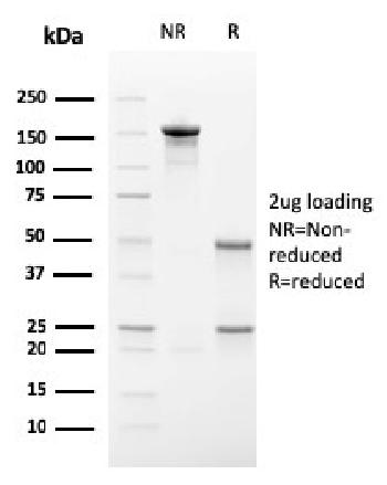 Fig. 2: SDS-PAGE Analysis Purified Secretory Component Mouse Monoclonal Antibody (SC-05). Confirmation of Purity and Integrity of Antibody.