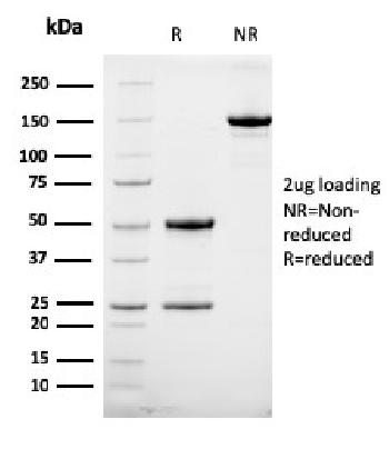 Fig. 1: SDS-PAGE Analysis Purified HER-2 Mouse Monoclonal Antibody (HRB2/258). Confirmation of Integrity and Purity of Antibody.