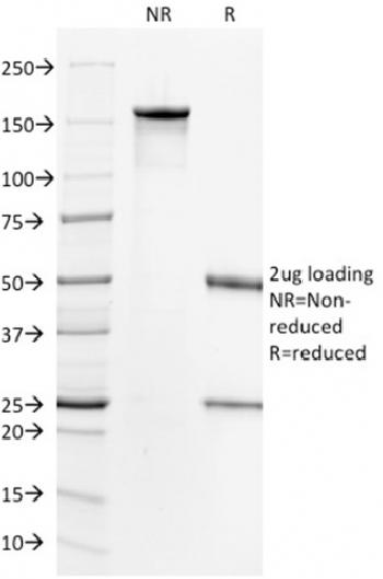 Fig. 1: SDS-PAGE Analysis Purified HER-2 Mouse Monoclonal Antibody (HRB2/718). Confirmation of Integrity and Purity of Antibody.