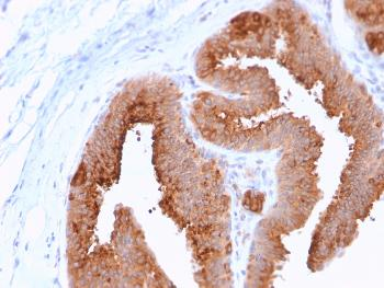 Fig. 2: Formalin-fixed, paraffin-embedded human Breast Carcinoma stained with HER-4 / ERBB4 Mouse Monoclonal Antibody (ERBB4/2581).