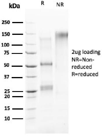 Fig. 3: SDS-PAGE Analysis Purified HER-4 / ERBB4 Mouse Monoclonal Antibody (ERBB4/2581). Confirmation of Purity and Integrity of Antibody.