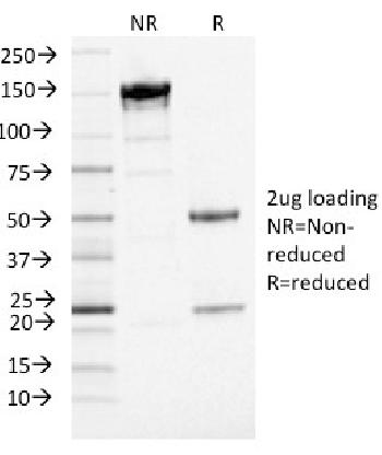Anti-PD-L1 / PDCD1LG1 / CD274 / B7-H1 (Cancer Immunotherapy Target) Monoclonal Antibody(Clone: PDL1/2746)