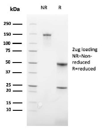 Fig. 2: SDS-PAGE Analysis Purified CD235a Recombinant Rabbit Monoclonal Antibody (GYPA/3219R). Confirmation of Integrity and Purity of Antibody.