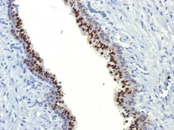 Fig. 1: Formalin-fixed, paraffin-embedded human Prostate Carcinoma stained with FOXA1 Monoclonal Antibody (FOXA1/1514).