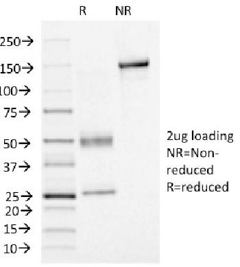 Fig. 3: SDS-PAGE Analysis Purified FOXA1 Mouse Monoclonal Antibody (FOXA1/1515). Confirmation of Integrity and Purity of Antibody.