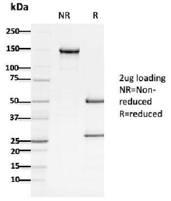 Fig. 1: SDS-PAGE Analysis Purified APC Mouse Monoclonal Antibody (ALi 12-28). Confirmation of Purity and Integrity of Antibody.
