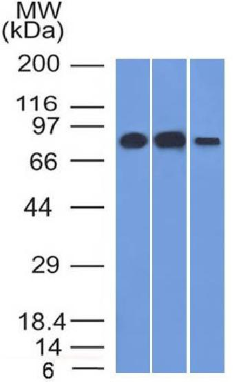 Fig. 1: Western Blot Analysis A) HeLa (B) Raji and C) HepG2 cell lysate Using MCM7 Mouse Monoclonal Antibody (MCM7/1466).